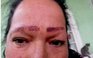 Read more about the article Botched Cosmetics Job Leaves Woman With Uneven Eyebrow Tattoos